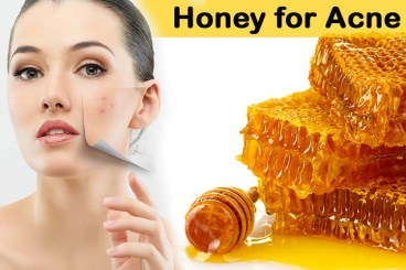 Honey-for-Acne